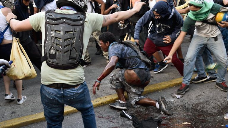 Image result for Venezuelan Man Burned Alive Dies as Death Toll Tops 73
