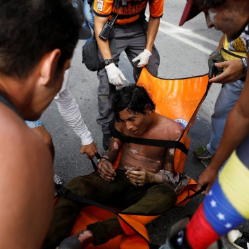 Despite the best efforts of protesters who routinely attack hospitals, Venezuela's healthcare system still has the capacity to care for this demonstrator, who suffered massive burns from his ordeal. (AFP)