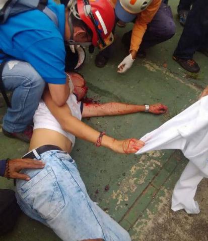 Los Andes University student Freilan Alvarez (21) was shot in the right eye. (Prensa Gabinete de Seguridad y Paz)