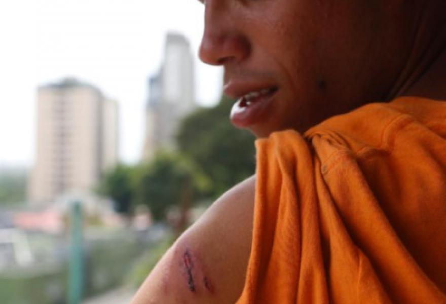 Student Angel Rodriguez injured by demonstrators. (Gabriela Santana)
